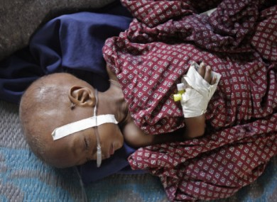 An unidentified child lies in a field hospital of Doctors Without Borders, MSF, in the town of Dadaab, Kenya.