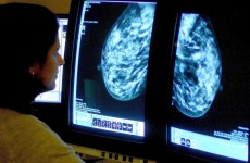 Stronger breast cancer surveillance will reduce health service costs – report